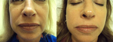 Dermatology Before and After Pictures Fort Myers, FL