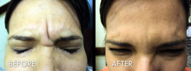 Botox® Before and After Pictures Fort Myers, FL