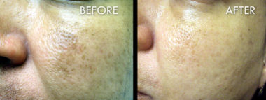 Chemical Peels Before and After Pictures Fort Myers, FL