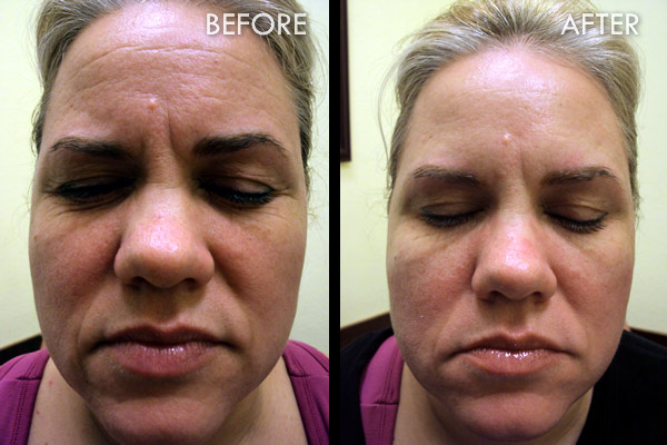 Dermal Fillers Before and After Pictures Fort Myers Cape