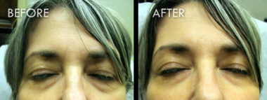 Dermal Fillers and Injectables Before and After Pictures Fort Myers, FL