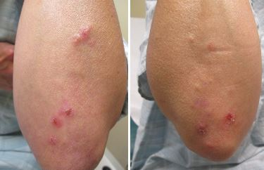 Dermatitis Herpetiformis Lipoidica Before and After Pictures Fort Myers, FL