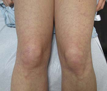 Livedo Reticularis Before and After Pictures Fort Myers, FL