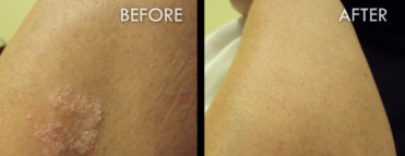 Psoriasis Treatment Before and After Pictures Fort Myers, FL