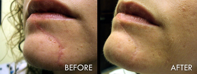 Scar Removal/Revision in Fort Myers, FL