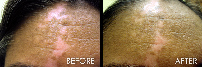 Vitiligo Treatment Before And After Pictures Fort Myers Cape Coral